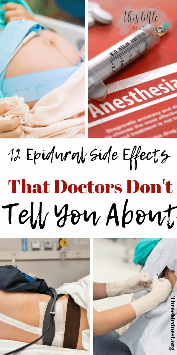 12 things your doctor doesn't tell you about epidurals #epidurals #pregnancy #childbirth #childbirthpaincontrol #Givingbirth