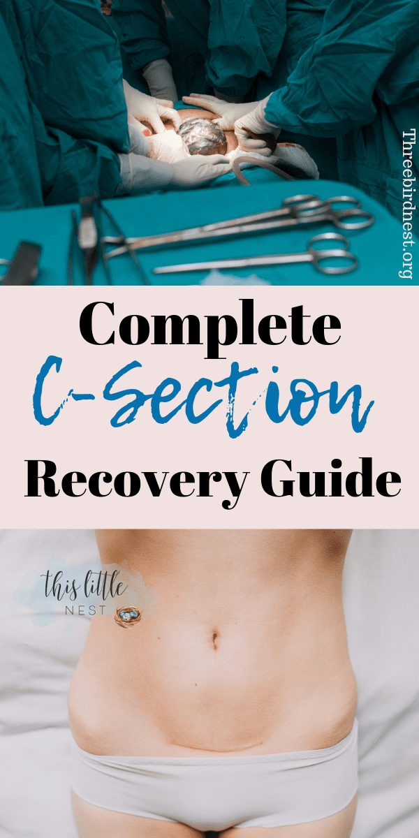 C- Section and how to recover faster #csection #csectionrecovery #childbirth #pregnancy